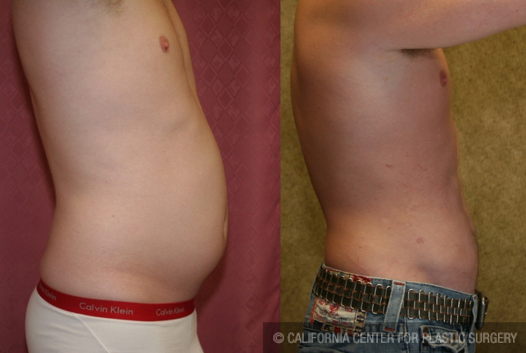 Male Liposuction Abdomen Before & After Patient #5600
