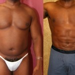 Male Liposuction Abdomen Before & After Patient #5661