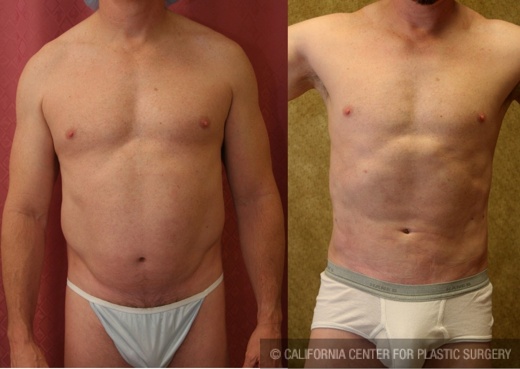 Patient #5670 Male Liposuction Abdomen Before and After