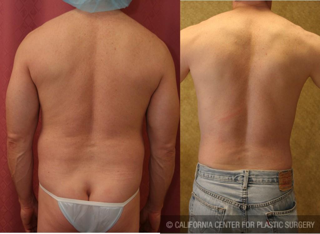 Male Liposuction Abdomen Before & After Patient #5670