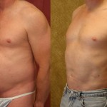 Male Liposuction Abdomen Before & After Patient #5670