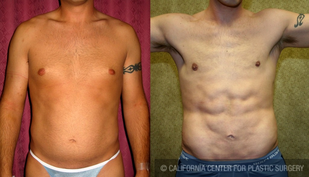 Male Liposuction Abdomen Before & After Patient #5604