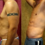 Male Liposuction Abdomen Before & After Patient #5604