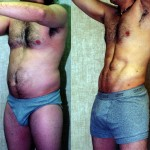 Male Liposuction Abdomen Before & After Patient #5609