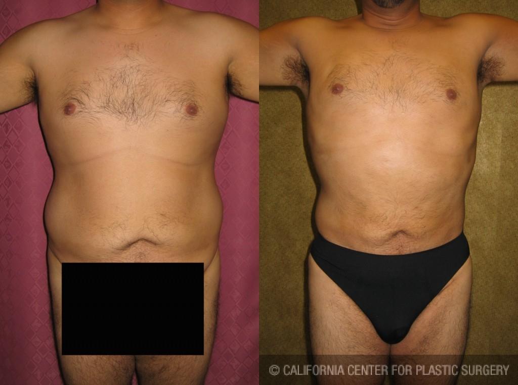 Male Liposuction Abdomen Before & After Patient #5622
