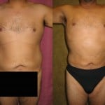 Male Liposuction Abdomen Before & After Patient #5622