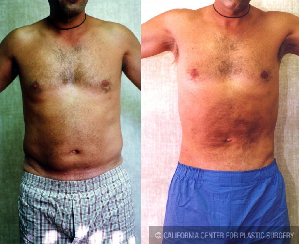 Male Liposuction Abdomen Before & After Patient #5625