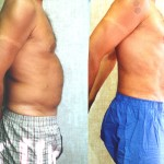 Male Liposuction Abdomen Before & After Patient #5625