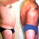 Male Liposuction Abdomen Before & After Patient #5633