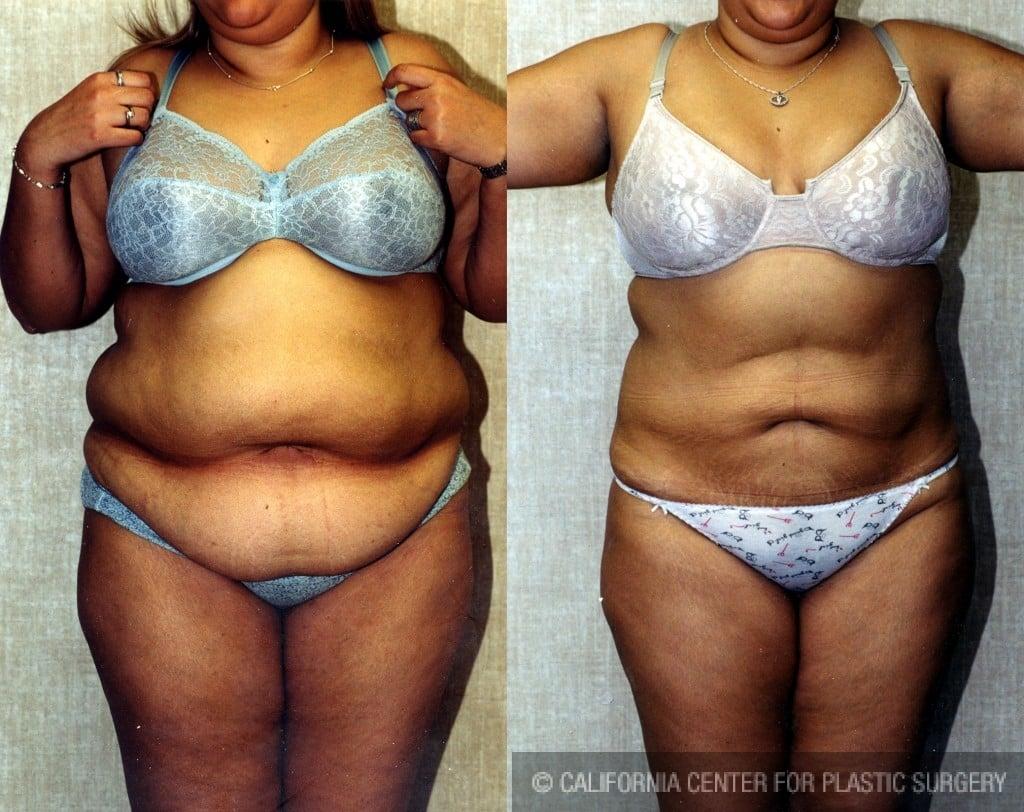 Liposuction Abdomen Plus Size Before & After Patient #5575