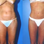 Liposuction Abdomen Medium Before & After Patient #5548