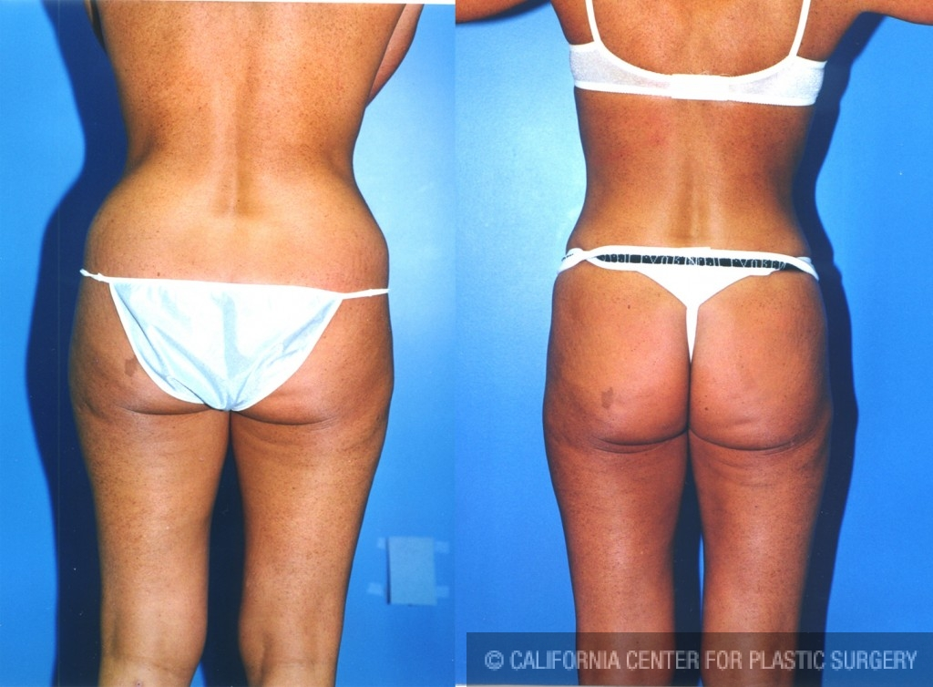 Liposuction Abdomen Medium Before & After Patient #5548