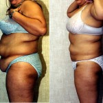 Liposuction Abdomen Plus Size Before & After Patient #5575