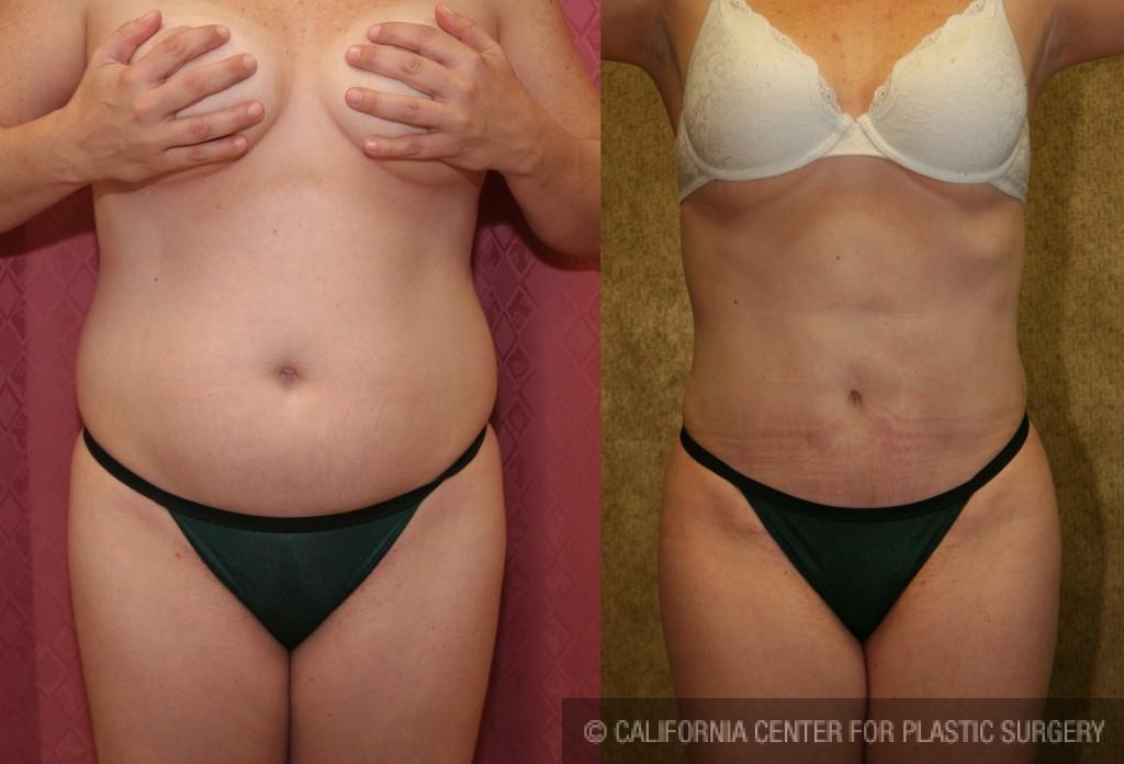 Liposuction Abdomen Medium Before & After Patient #5566