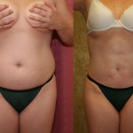 Liposuction Abdomen Medium Before & After Patient #5566