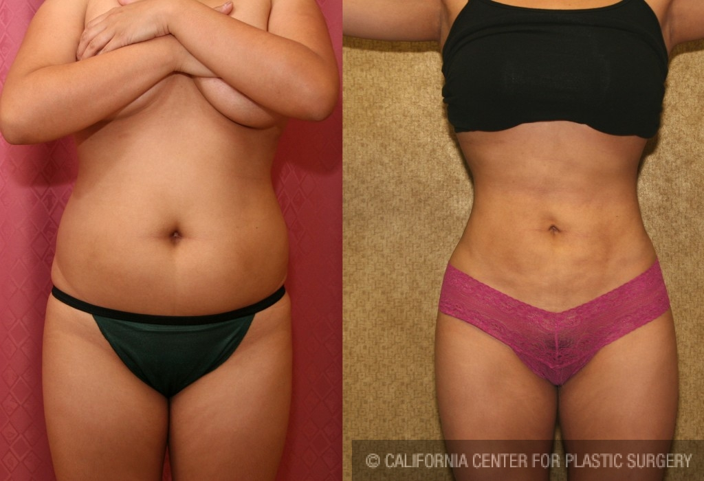 Liposuction Abdomen Medium Before & After Patient #5514