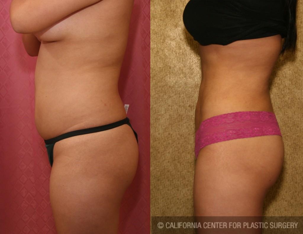 Liposuction Abdomen Medium Before & After Patient #5514