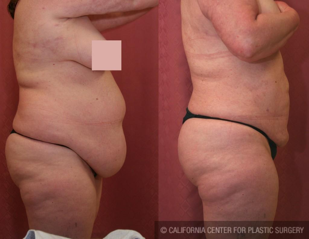 Liposuction Abdomen Plus Size Before & After Patient #5571