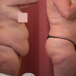 Liposuction Abdomen Plus Size Before & After Patient #5571