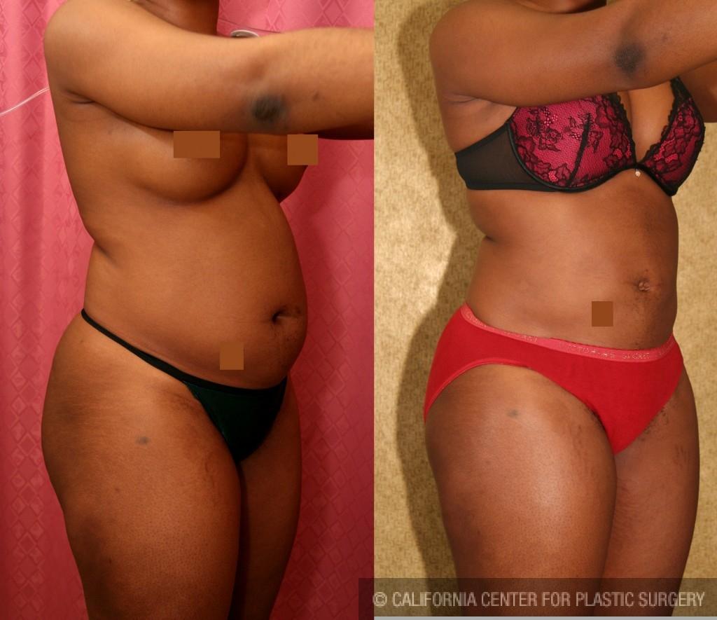 Liposuction Abdomen Medium Before & After Patient #5557