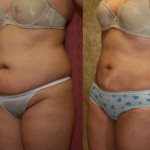 Liposuction Abdomen Plus Size Before & After Patient #5589