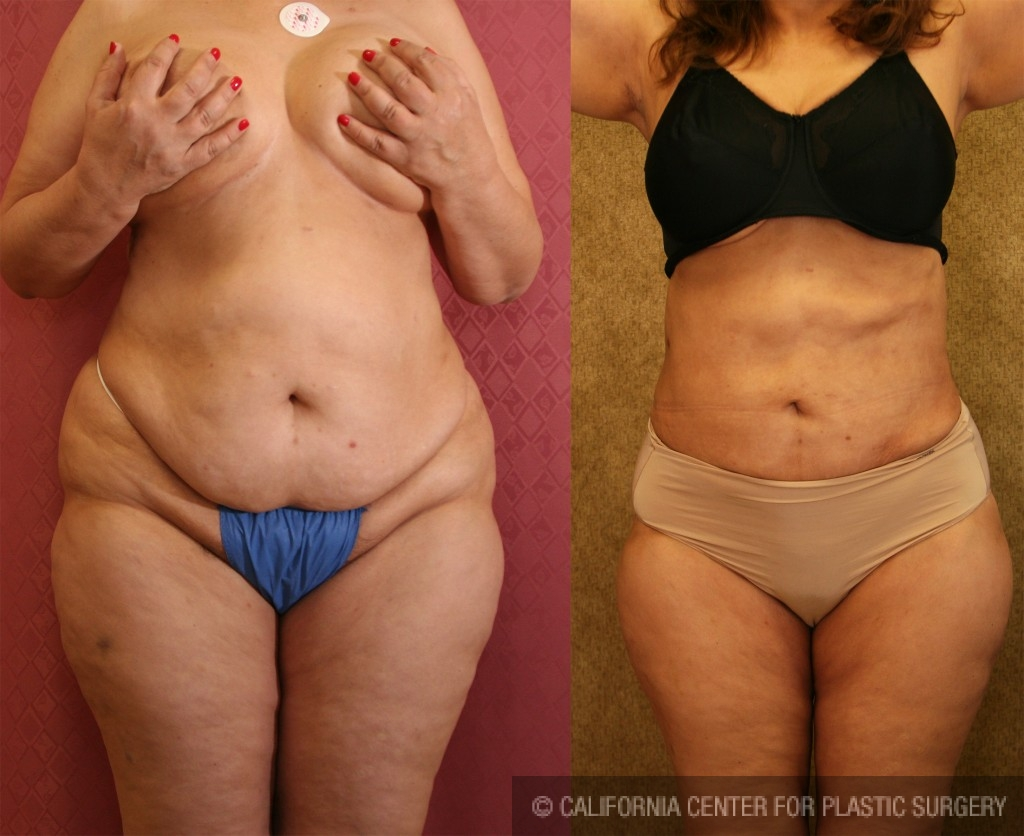 Liposuction Abdomen Plus Size Before & After Patient #5593