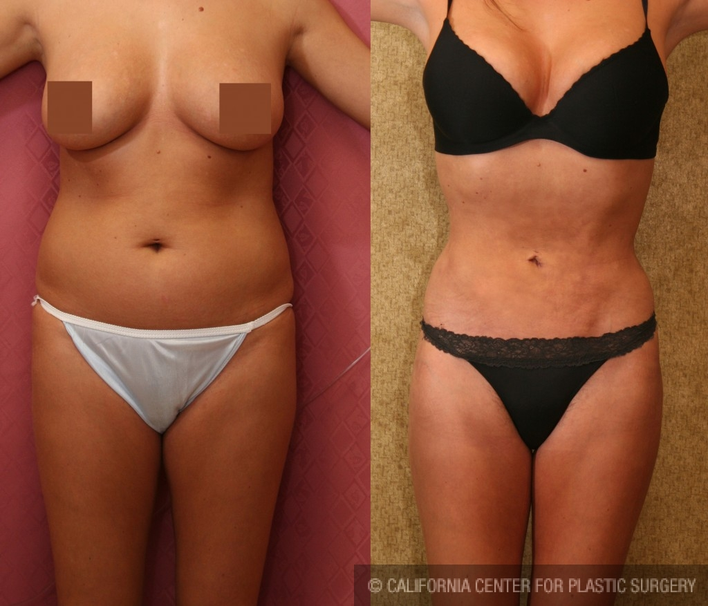 Liposuction Abdomen Medium Before & After Patient #5538