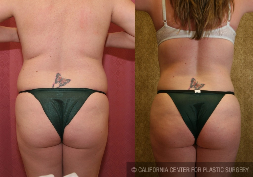 Liposuction Abdomen Medium Before & After Patient #5532