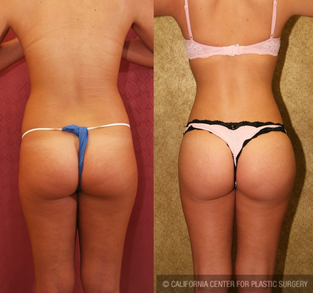 Liposuction Abdomen Medium Before & After Patient #5518