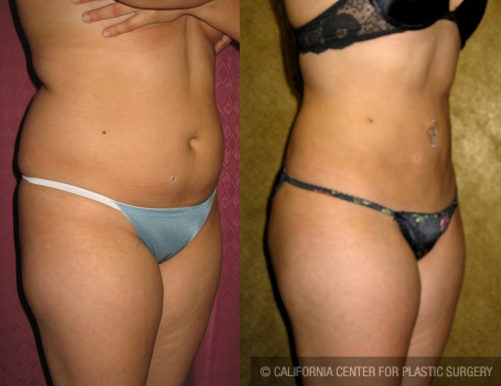 Liposuction Abdomen Medium Before & After Patient #5527