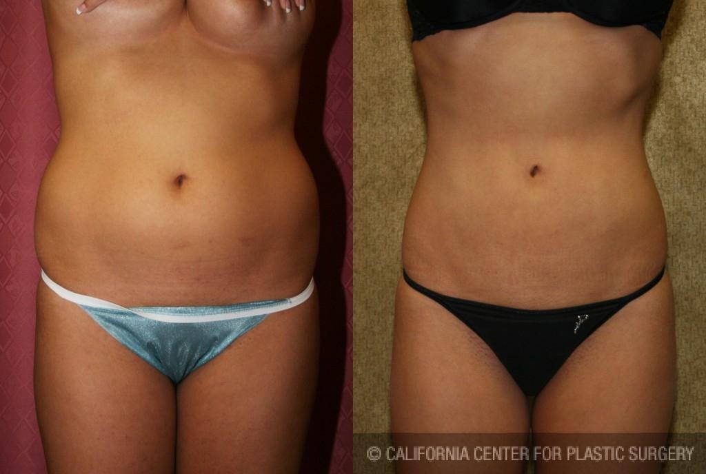 Liposuction Abdomen Medium Before & After Patient #5505