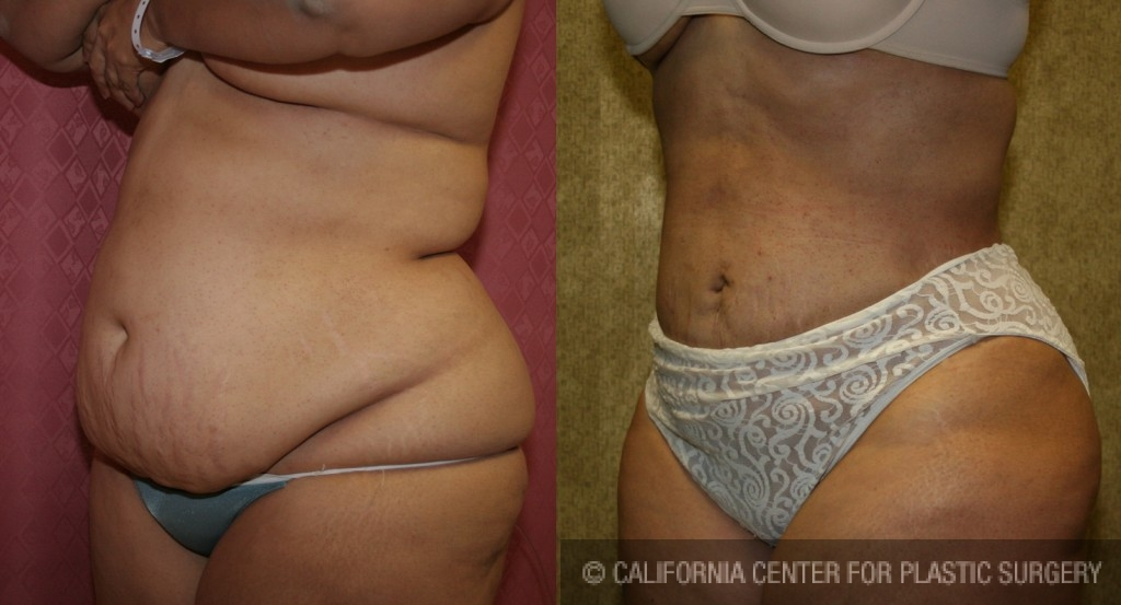 Patient 5580 Liposuction Abdomen Plus Size Before And After Photos Encino Plastic Surgery Gallery Glendale Dr Sean Younai