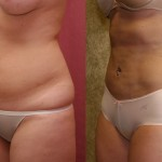 Liposuction Abdomen Medium Before & After Patient #5522