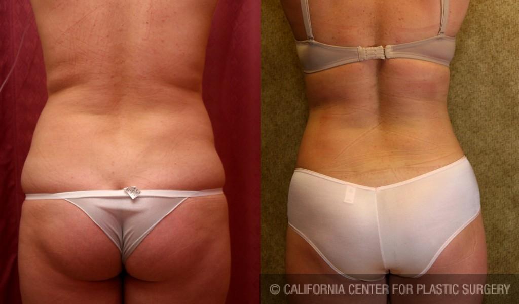 Liposuction Abdomen Medium Before & After Patient #5522