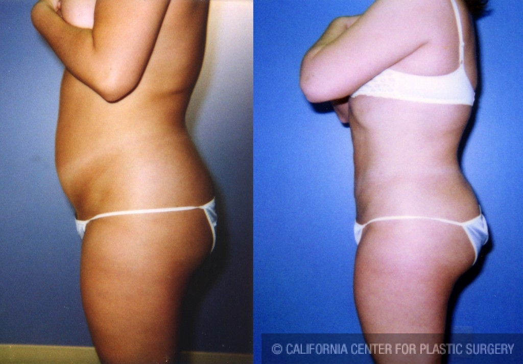 Liposuction Abdomen Medium Before & After Patient #5541