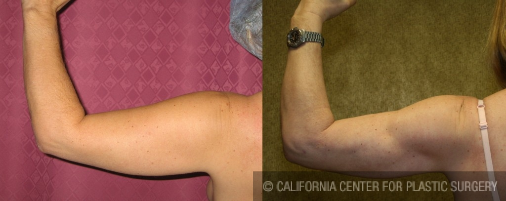 Liposuction Arms Before & After Patient #5709
