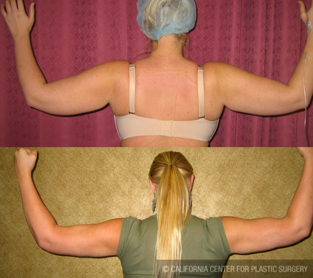 Liposuction Arms Before & After Patient #5686