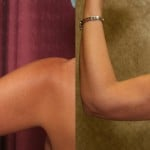 Liposuction Arms Before & After Patient #5695