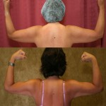 Liposuction Arms Before & After Patient #5704