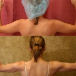 Liposuction Arms Before & After Patient #5690