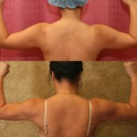 Liposuction Arms Before & After Patient #5712