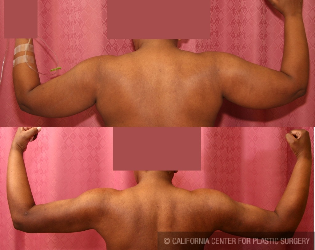 Liposuction Arms Before & After Patient #5715