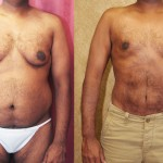Male Liposuction Abdomen Before & After Patient #5675