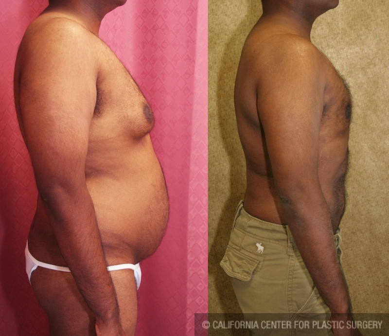Male Breast Reduction Before & After Patient #6805