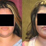 Neck & Face Liposuction Before & After Patient #6654