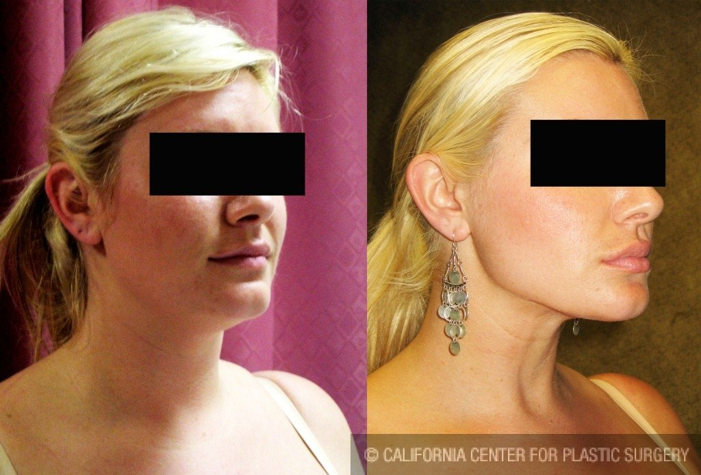 Neck & Face Liposuction Before & After Patient #6609