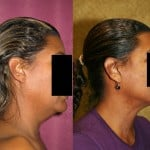 Neck & Face Liposuction Before & After Patient #6659