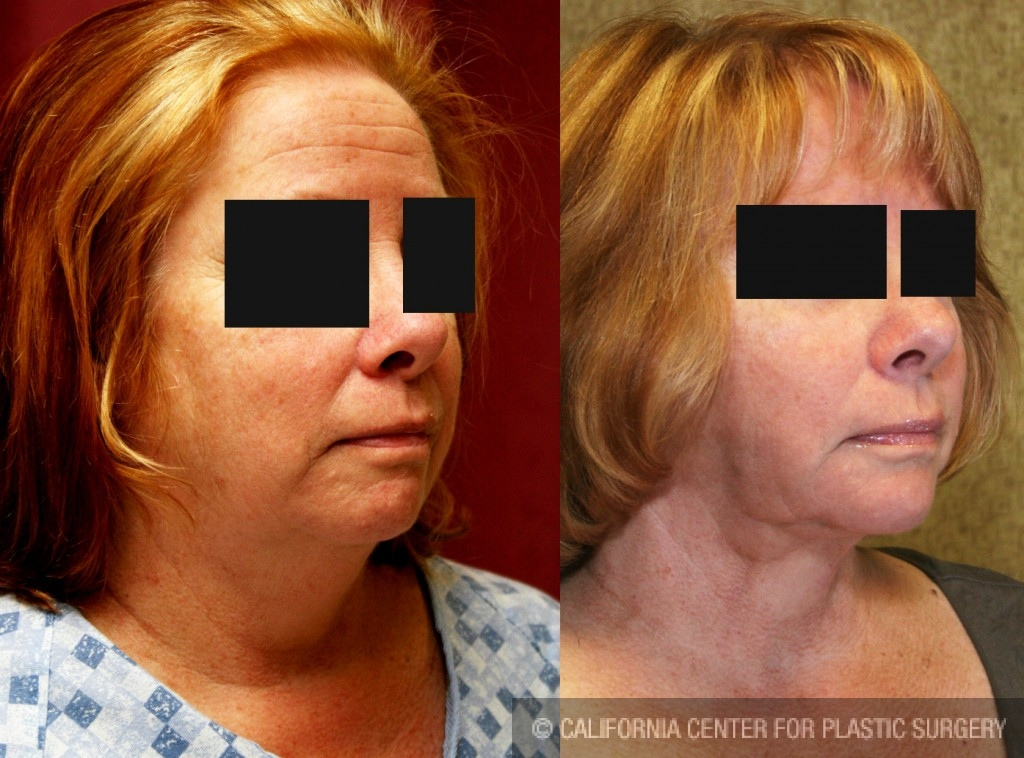 Neck & Face Liposuction Before & After Patient #6663