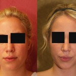 Neck & Face Liposuction Before & After Patient #6673