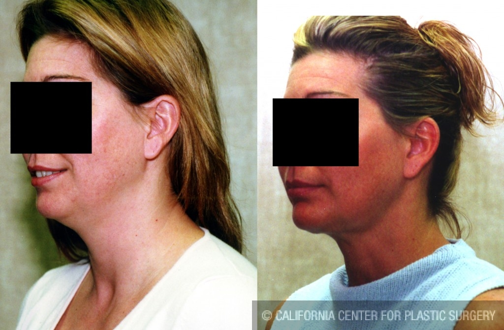 Neck & Face Liposuction Before & After Patient #6619